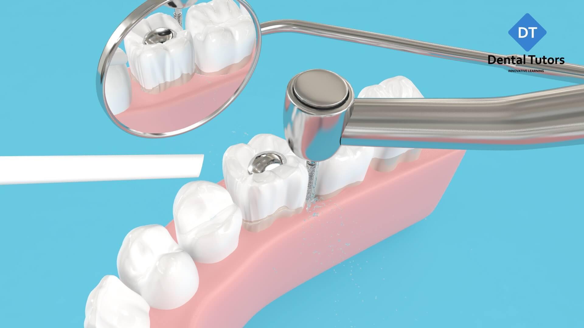 Dental crown preparation treatment