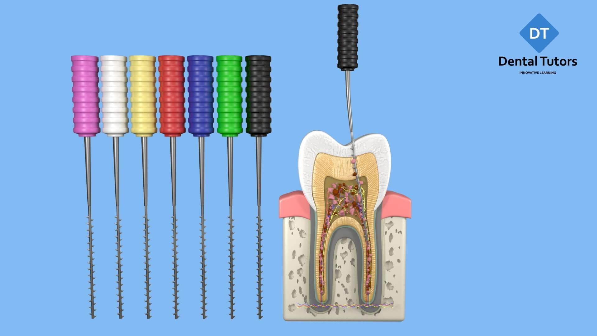Root Canal Treatment - Barbed Broaches