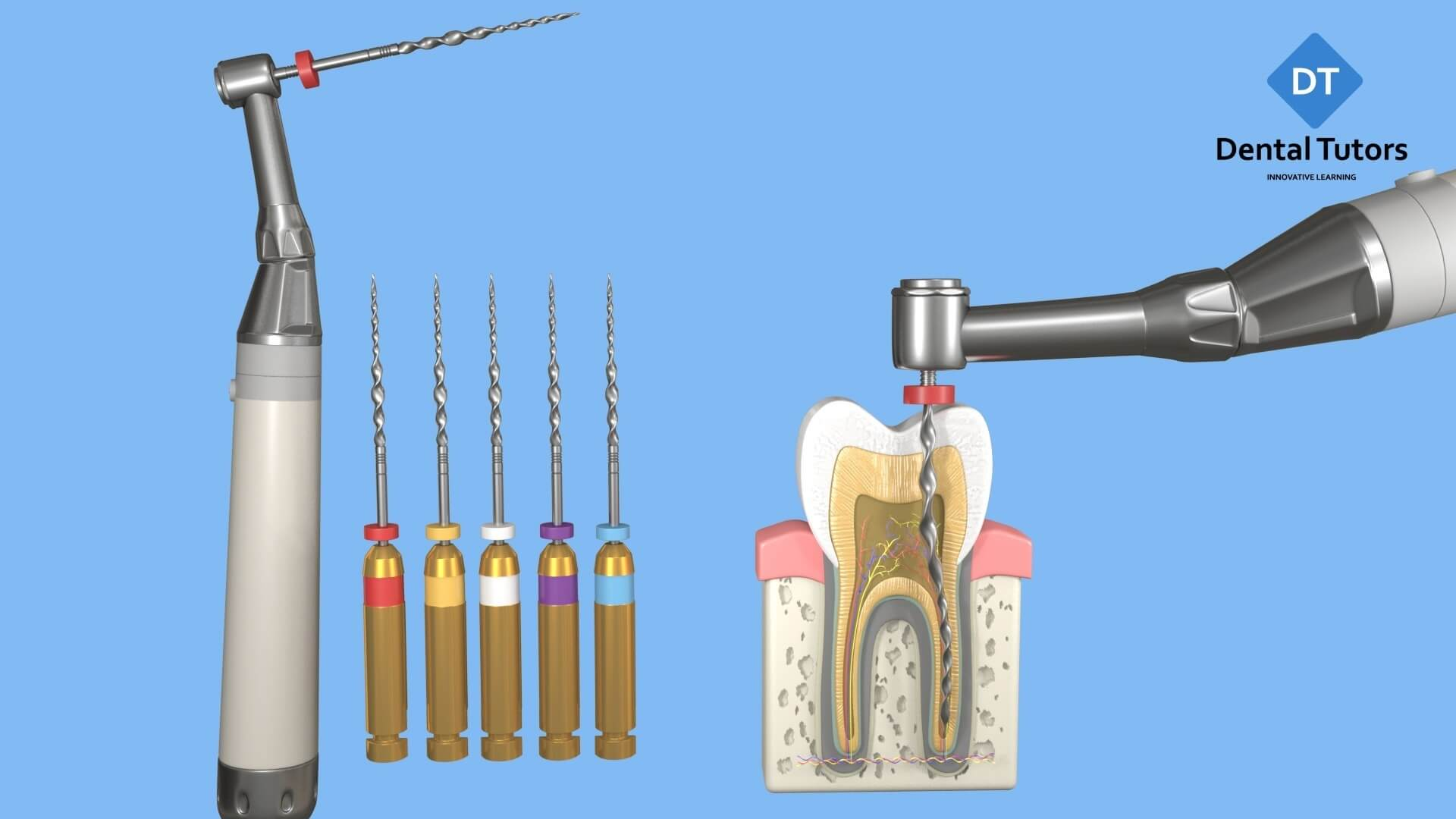 Root Canal Treatment - Files