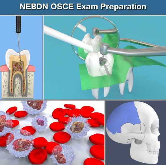 NEBDN Online OSCE Exam Revision and Preparation Dental Nurses by Dental Tutors Mock Exams